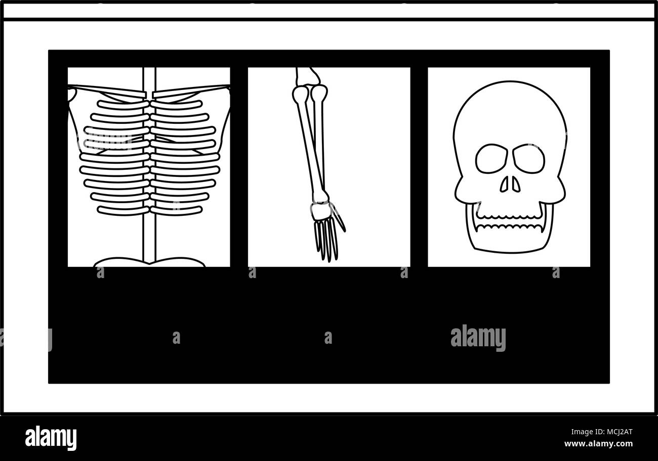 Xray bones images on black and white Stock Vector