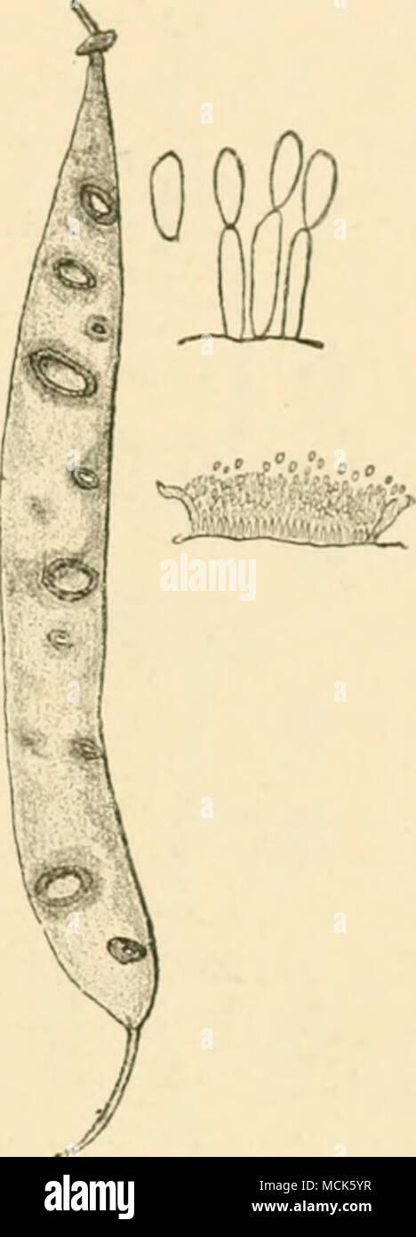 ". Fig. iii&.—ColUlotrichum Linde- vthianvni on pod of Kidnej' e:iii. Enlarged pustule and midia. ^ .Southw orth, ""A New Hollyhock Disease,"" Journal of Myroloiiy, vi., IsHU. -Southworth, Jovrnal of Mycoloijy, vi., 1890, p. 100. Atkinson, Alabama Afiri<'. Exper. Station Bulletin, No. 41, 1892. - Stock Image"
