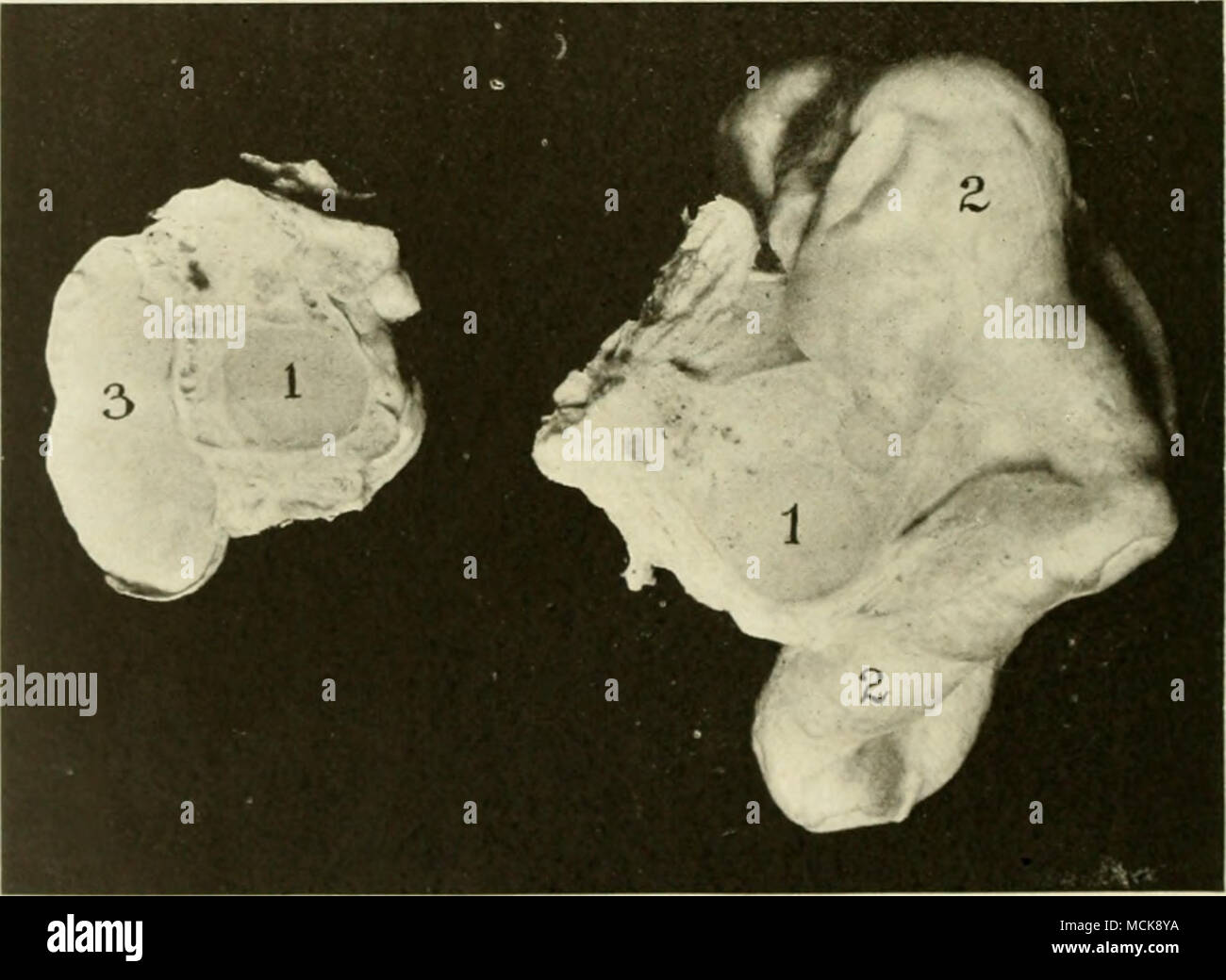 . ] ii, 161—Extreme Bilateral Hydrosalpinx. /, /, Section through cystic, adherent ovaries (cystic defeneration of corpus luteutn); 2, enormously distended oviduct. About % of total length lies underneath the portion shown ; 3, section through the smaller oviduct. absolute sterility of the patient. The disease assumes a va- riety of types. Generally, when hydrosalpinx is established, adhesion of the ovary within the pavilion of the tube has al- ready occurred. The mesosalpinx is also commonly adher- ent to the ovary, as shown in Figs. 154, 155 and 156, so that the cystic oviduct is thrown into - Stock Image