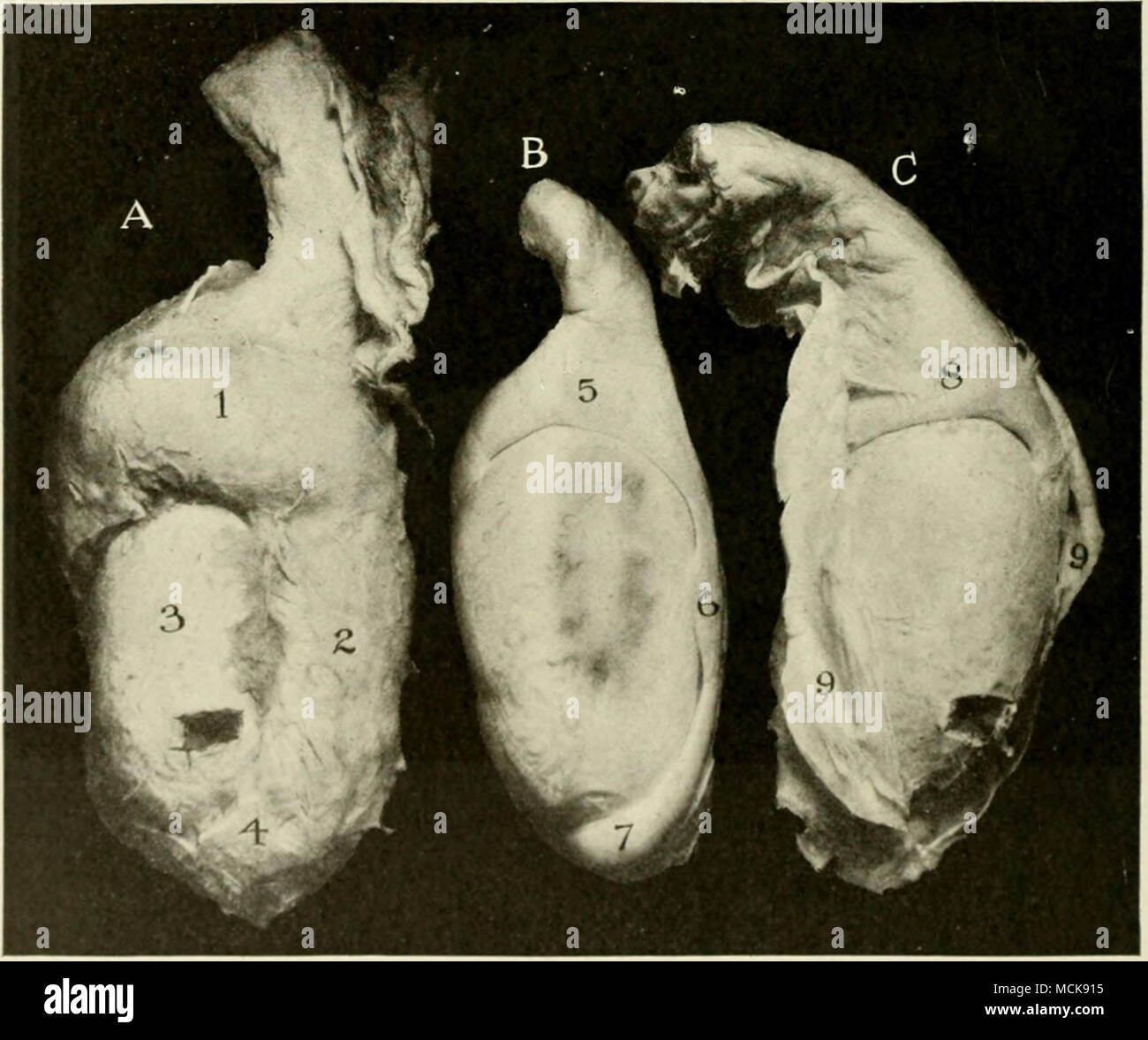 . FlG. 126—Orchitis and Epididymitis. Bull. /, Left testis ; />', normal left testis for comparison ; C, Right testis. /, Globus major of epididymis, greatly enlarged and adherent to testis ; , /, tail of epididymis; 5, 6, -, normal globus major, body and globus minor of epididymis respectively; 8, inflamed globus major; o, parietal Scrotal peritoneum adherent to testicle, incised and turned back. 3. Epididymitis of Adult Bulls Epididymitis develops occasionally in adult bulls which have a history of normal fertility over a somewhat ex- - Stock Image