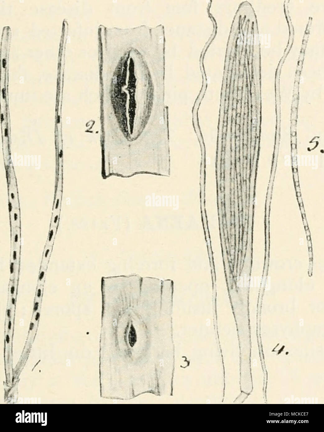 Fig 71 Lophodermium Pinastri I Fungus On Pine Leaves 2 Diagram Showing The Stages Of Germination Ascigerous Form 3 Conidial 4 Ascus With Spores 5 A Single Spore