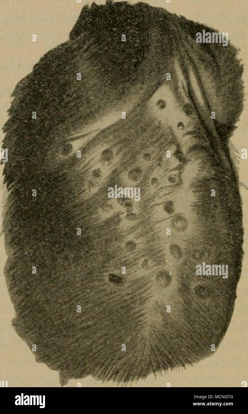 """. Hund. Staupe: Pustulöses Exantliera nach Schindelka. partien kommt es doch auch leichter zu einer größeren Krustenbildung. Die Einzel- cffloreszenzen konfluieren zuweilen. In 2—3 AVochen etwa erfolgt, falls der Fall überhaupt in Genesung übergeht, die Heilung, nachdem nach Ueberhäutung des Sub- stanzverlustes ein roter hyperämischer Fleck längere Zeit persistiert hat. Dieser """"Fleck"""" kann längere Zeit durch Schuppcnbildung ein """"flechtenartiges Aussehen"""" haben (Reuter). Ihrer Seltenheit halber sei die folgende Krankenbeobachtung etwas ausführ- licher gegeben. Bei 11 jungen Wölfen im  Stock Photo"""