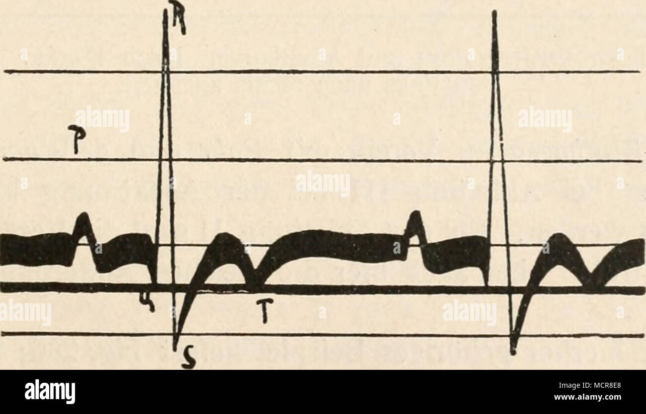Fig. 285. Elektrokardiogramme vom künstlich gespeisten Hundeherzen ...