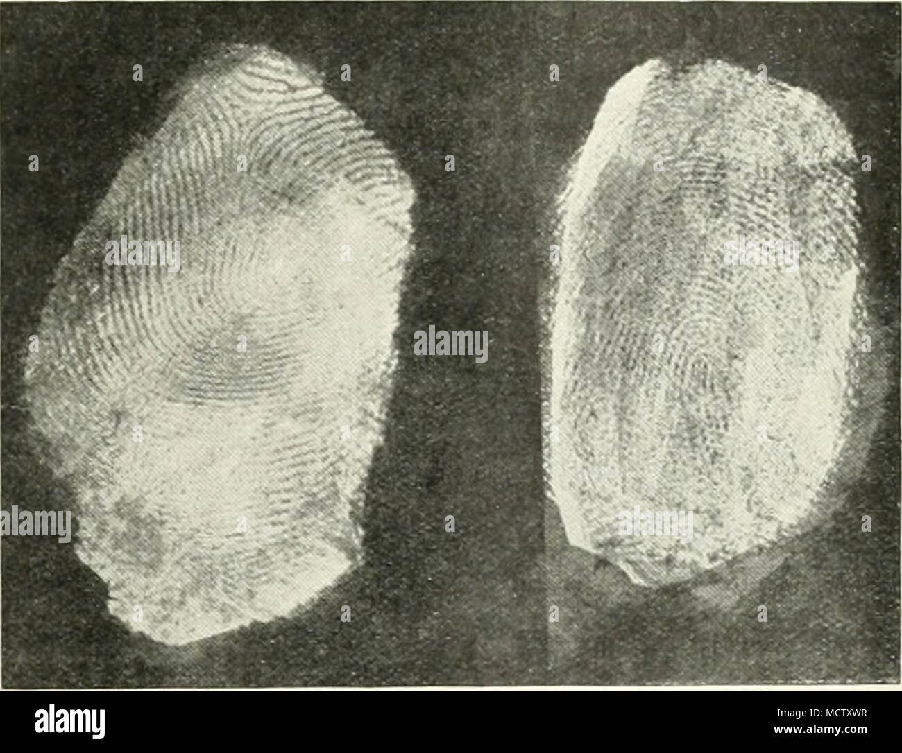 """. Fi:.. ;. Fig. 3. Fig. 2.âFINGER-PRINT DEVELOPED .FTER THREE YE-ARS WITH â ⢠SV.A.N """" INK. Fig. 3.âFINGER-PRINT DEVELOPED AFTER THREE YE.ARS WITH OSMIUM PVROGALLATE. system to the enumeration and classification of the pores on the ridges. The only point in this description which requires some correction is the statement (p. 259) that """" Stockis . . proved experimentally that the wearing of leather or indiarubber gloves need not prevent the formation of finger-prints, and in February igi2, in the Sââ¢â⢠case. Dr. Locard put theory into practice by identifying a gloved burglar with - Stock Image"""