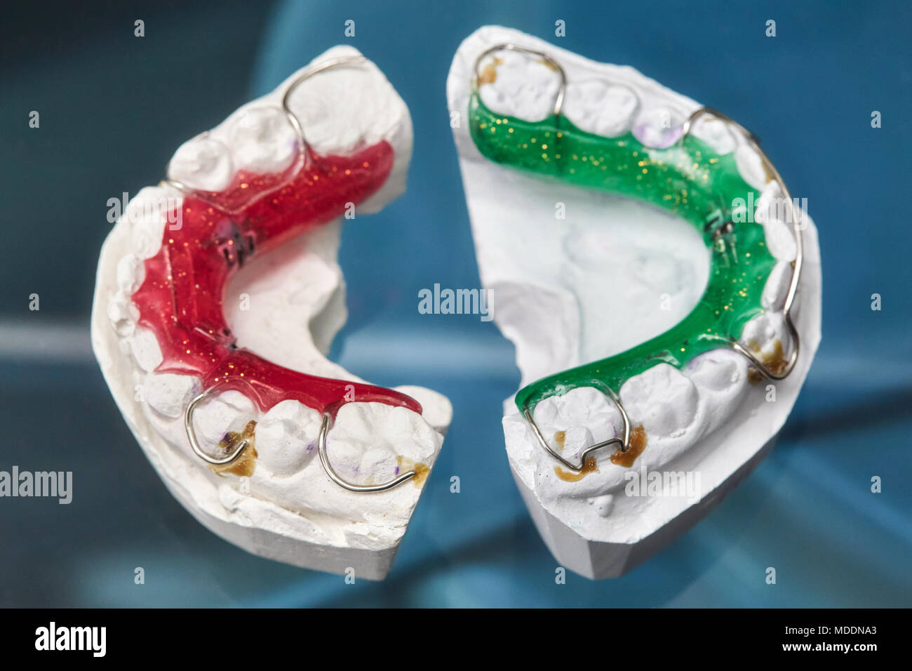 Colorful dental braces or retainers for teeth on black glass ...