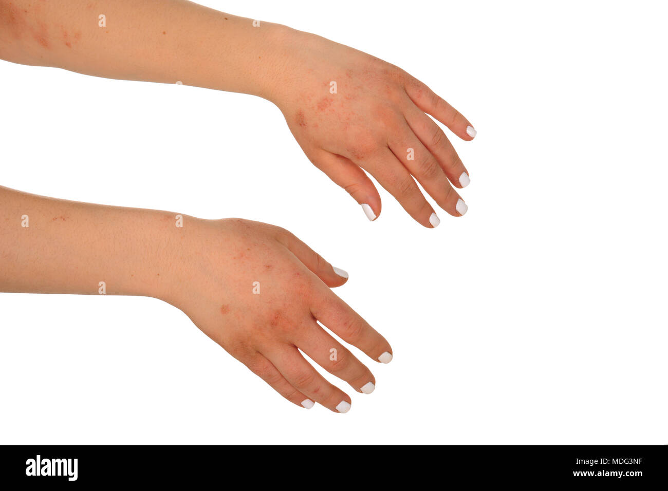 Dermatitis Eczema on the skin of the woman's hand Stock