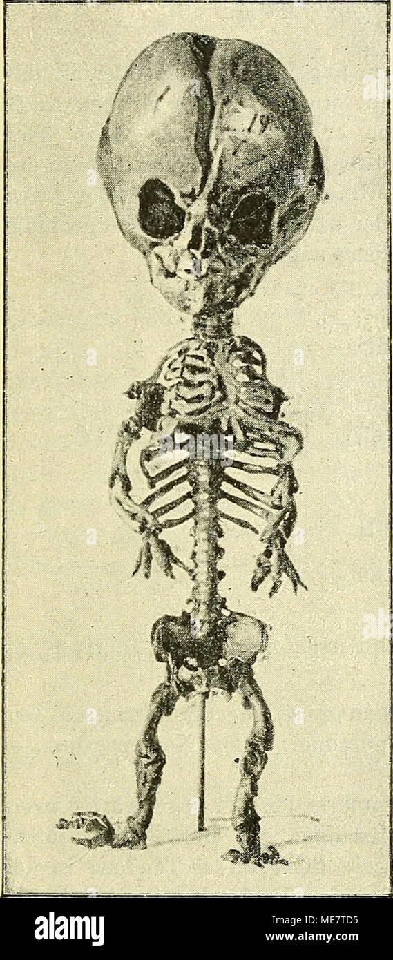 Niedlich Atlas Der Menschlichen Anatomie 5. Auflage Zeitgenössisch ...