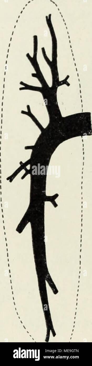 . Die Klassen und Ordnungen der Weichthiere (Malacozoa) : wissenschaftlich dargestellt in Wort und Bild . Abb. 42 Abb. 43 i m Abb. 44 Abb. 42. Rechte Niere von Delphinus delphis. — 1, Nach Anthony 1922, Abb. 5, 2 Nierenarterien, 3 Ureter. S. 44. Abb. 43. Nierenarterien von Mesoplodon bidens. Abb. 44. Nierengänge von Mesoplodon bidens. - Nach Anthony 1922, Abb. 3, 8. 43. Nach Anthony 1922, Abb. 4, S. 43. der Länge des Körpers zunimmt, über die andern Zahnwale bis Mesoplodon,, und daran anschließend bei den Bartenwalen weiter wächst. Der Gefäßeintritt ist nicht überall gleich. Bei Mesoplodon (An - Stock Image