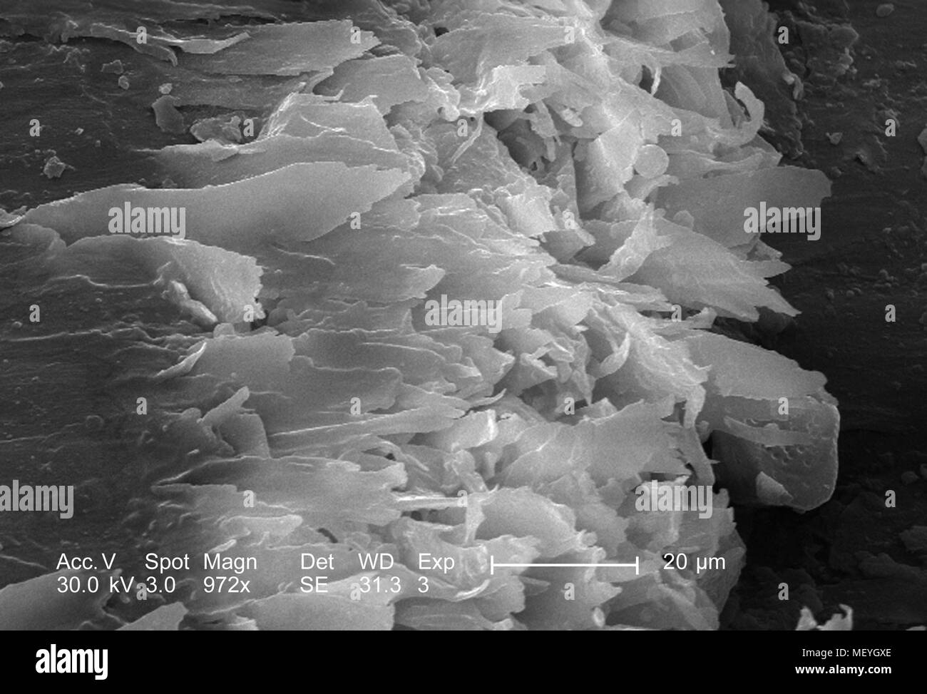 Morphological characteristics of the domesticated cat's (Felis domesticus) claw, revealed in the 972x magnified scanning electron microscopic (SEM) image, 2005. Image courtesy Centers for Disease Control (CDC) / Janice Haney Carr. () - Stock Image