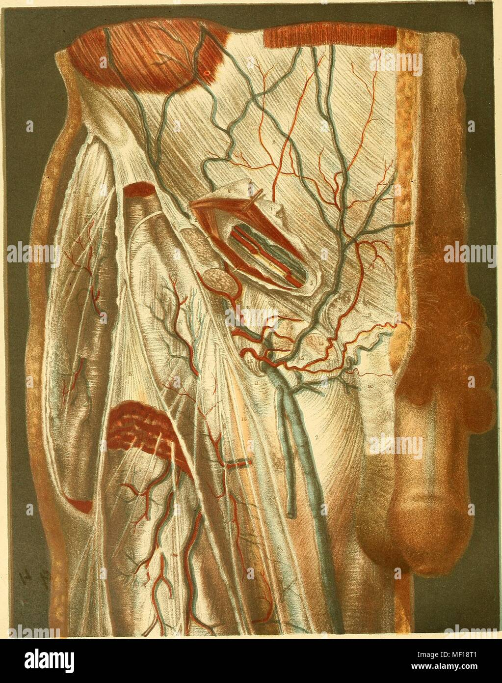 Anatomical illustration depicting a hernia as well as major veins and arteries, 1892. Courtesy Internet Archive. () - Stock Image