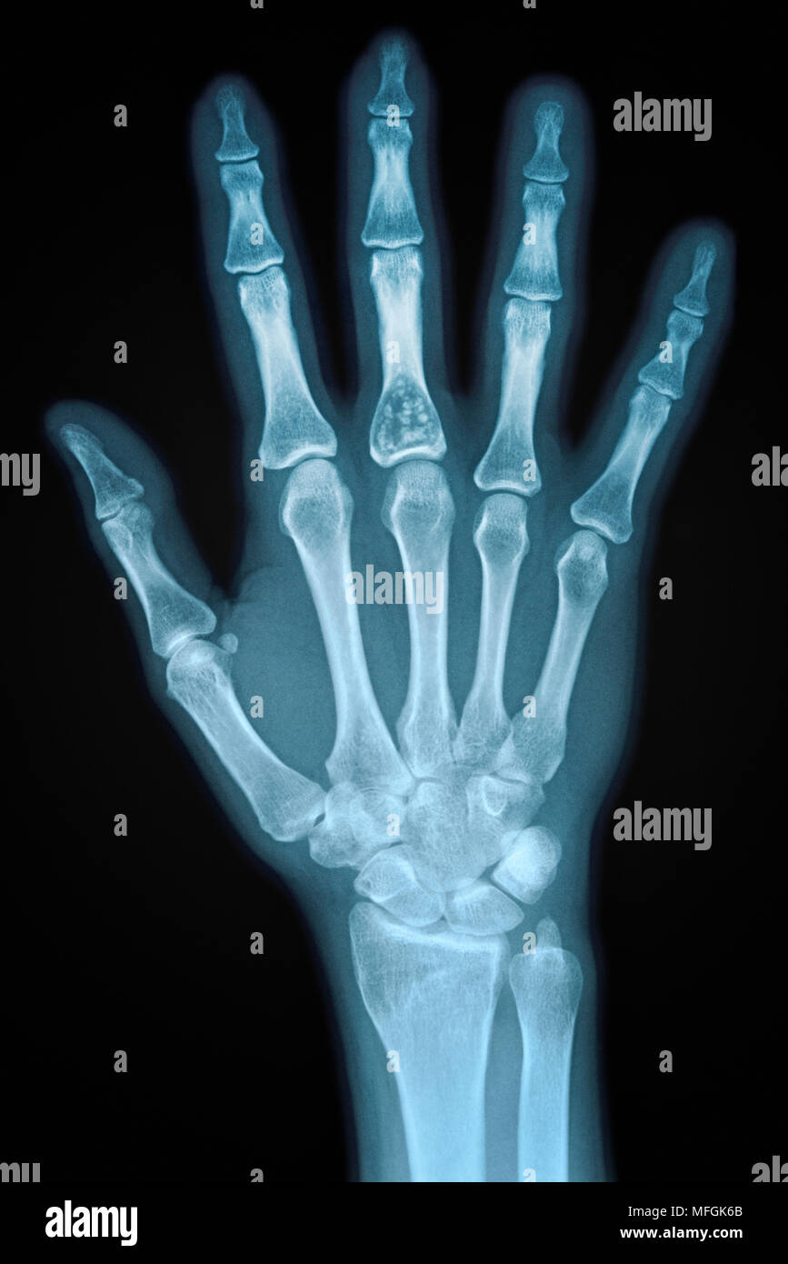 Hand X-ray of an Adult Female - Stock Image