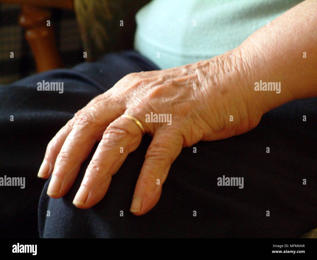 Hand Of An Old Woman Resting On Her Knee On Her Finger Is Her Gold