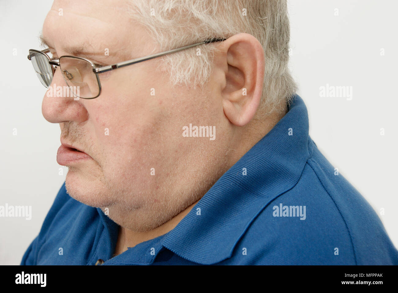 Elderly man suffering from Bell's Palsy Bell's palsy is a form of facial paralysis resulting from a dysfunction of the cranial nerve VII (the facial n - Stock Image