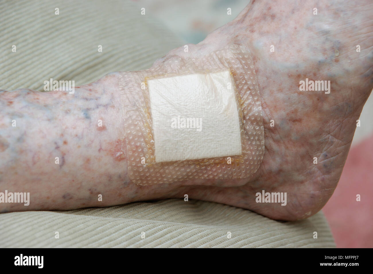 Elderly woman with Mepilex borderlite iodine dressing / plaster to keep wound infection free model release - Stock Image