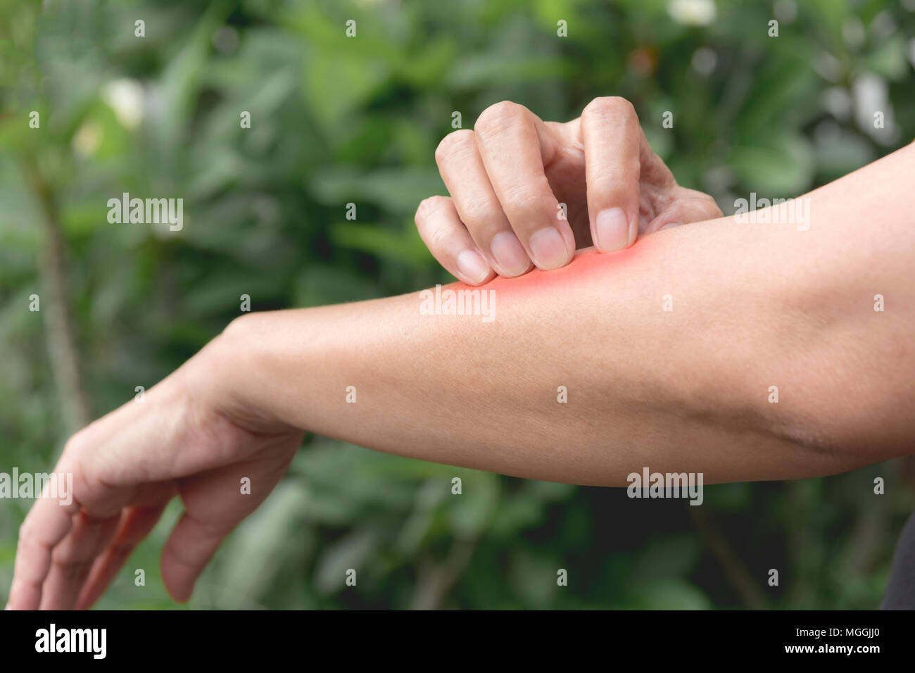 Dry Skin Woman Arm Stock Photos & Dry Skin Woman Arm Stock Images