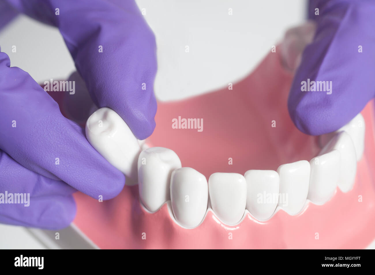 Dental Model Teeth Is Used To Demonstration Of Tooth Extraction By Doctors Isolated On A White Background Stock Photo Alamy