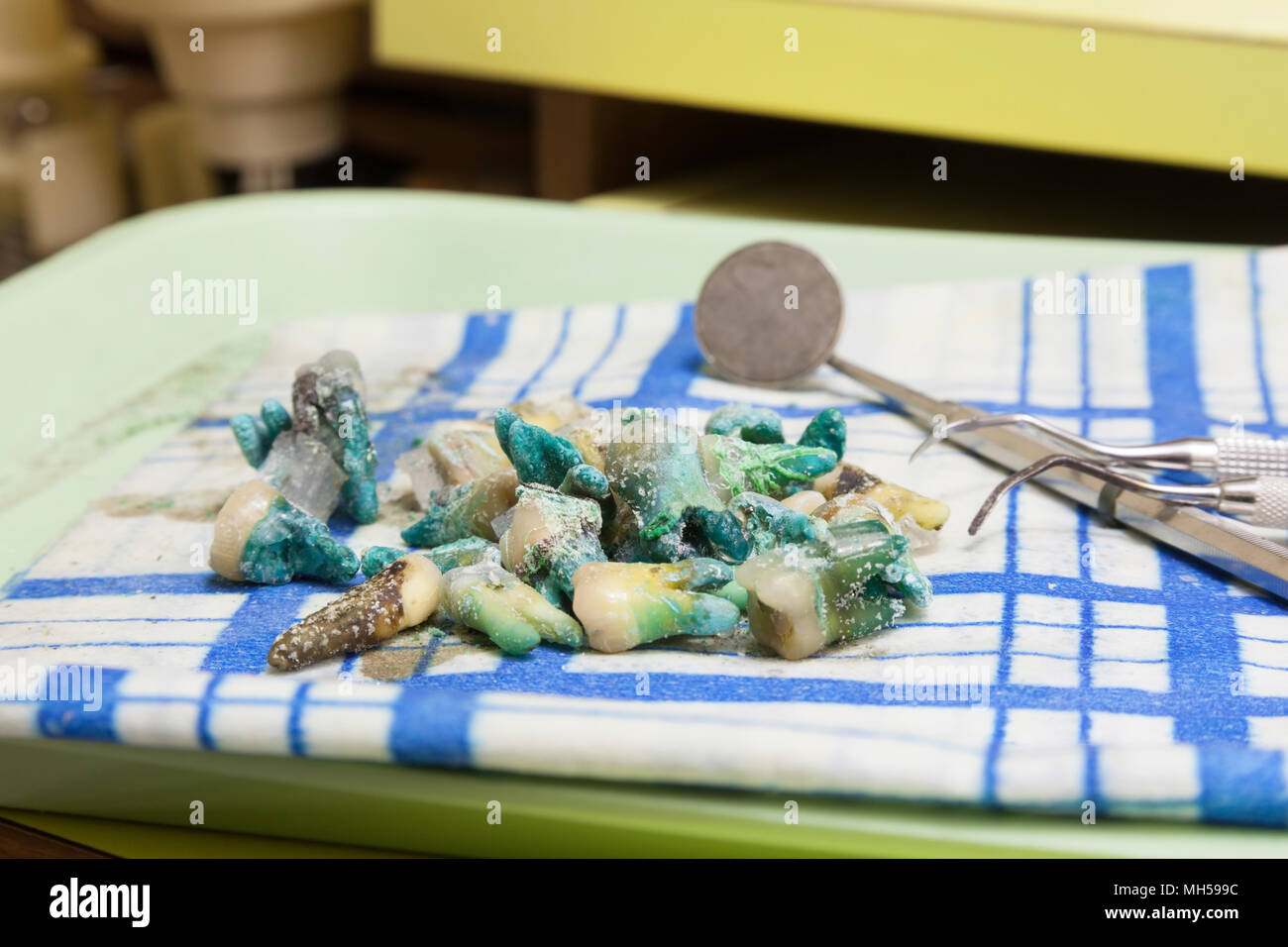 Rotten extracted teeth and dentistry tools displayed on a tray. - Stock Image