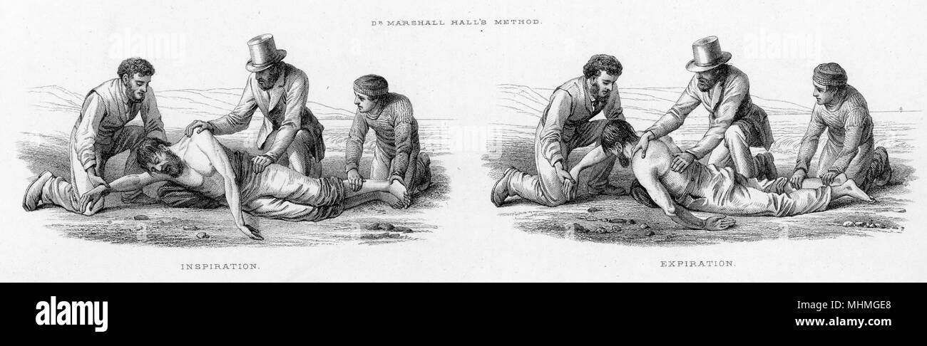 Resuscitation - Marshall Hall's method       Date: circa 1860 - Stock Image
