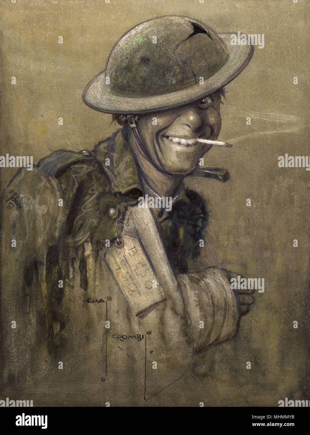 'A Blighty One' by Charles Crombie. A cheery First World War British Tommy,  happy to have received a 'blighty' wound (one bad enough to warrant being  sent ...
