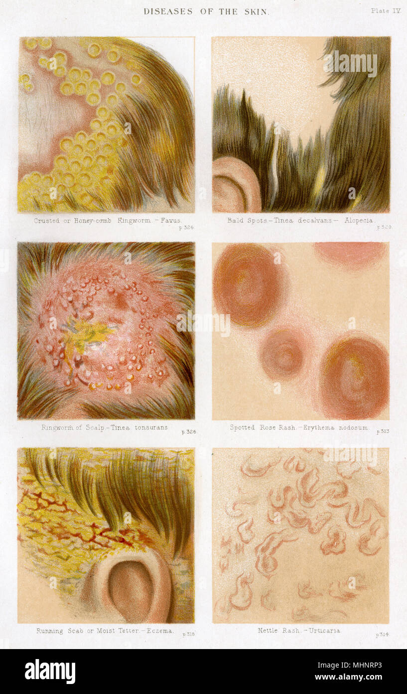 Diseases of the Skin - Plate 4. Crusted or Honeycomb Ringworm, Alopecia (hair-loss), Ringworm of the scalp, spotted rose rash, running scab - eczema and Nettle rash.     Date: circa 1880s - Stock Image