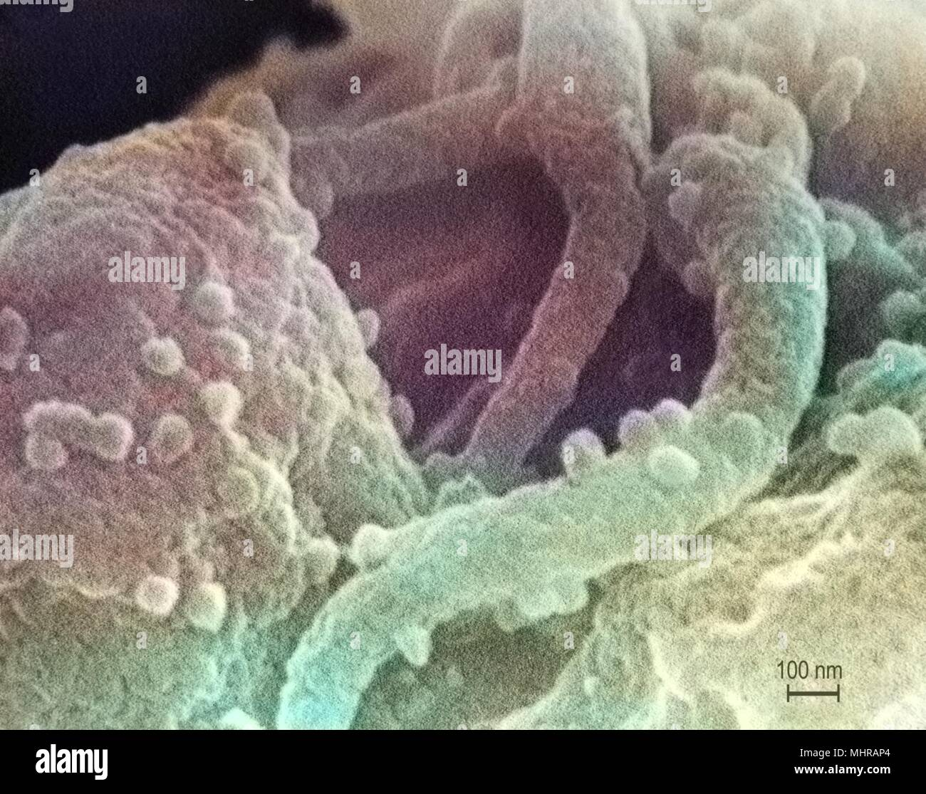 Presence of the human immunodeficiency virus (HIV-1) in a tissue sample, revealed in the highly magnified scanning electron microscopic (SEM) image, 1989. Image courtesy Centers for Disease Control (CDC) / C. Goldsmith, P. Feorino, E. L. Palmer, W. R. McManus. Note: Image has been digitally colorized using a modern process. Colors may not be scientifically accurate. () - Stock Image