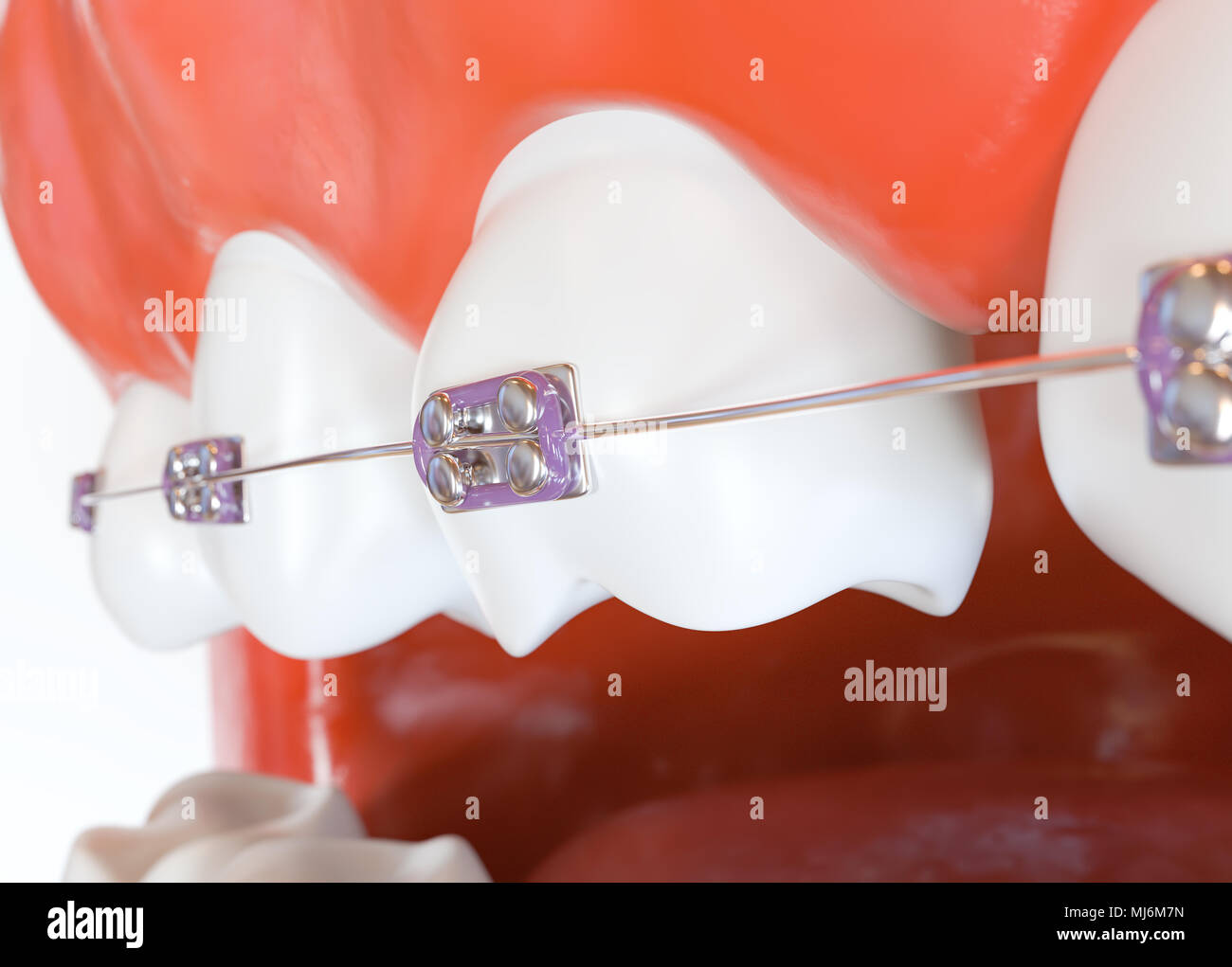 Teeth With Braces Or Brackets In Open Human Mouth 3d Rendering