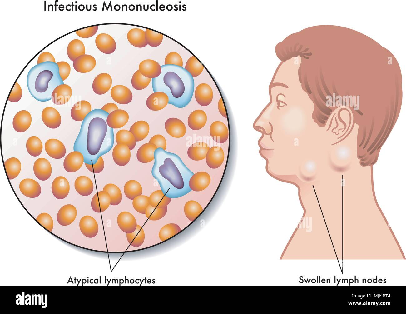 vector medical illustration of the symptoms of infectious mononucleosis - Stock Image