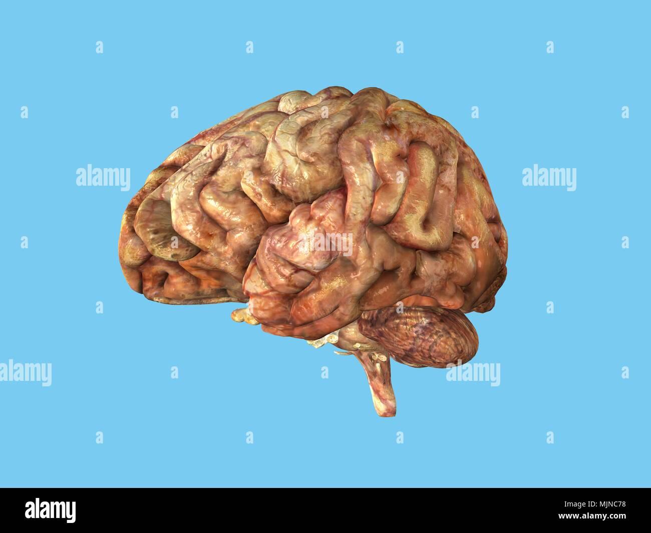 Human Brain -compromised health - Stock Image