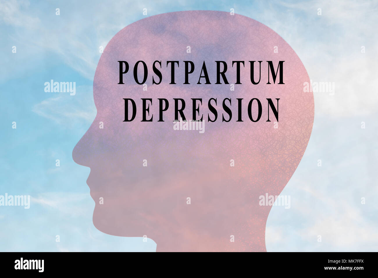 Render illustration of POSTPARTUM DEPRESSION title on head silhouette, with cloudy sky as a background. - Stock Image