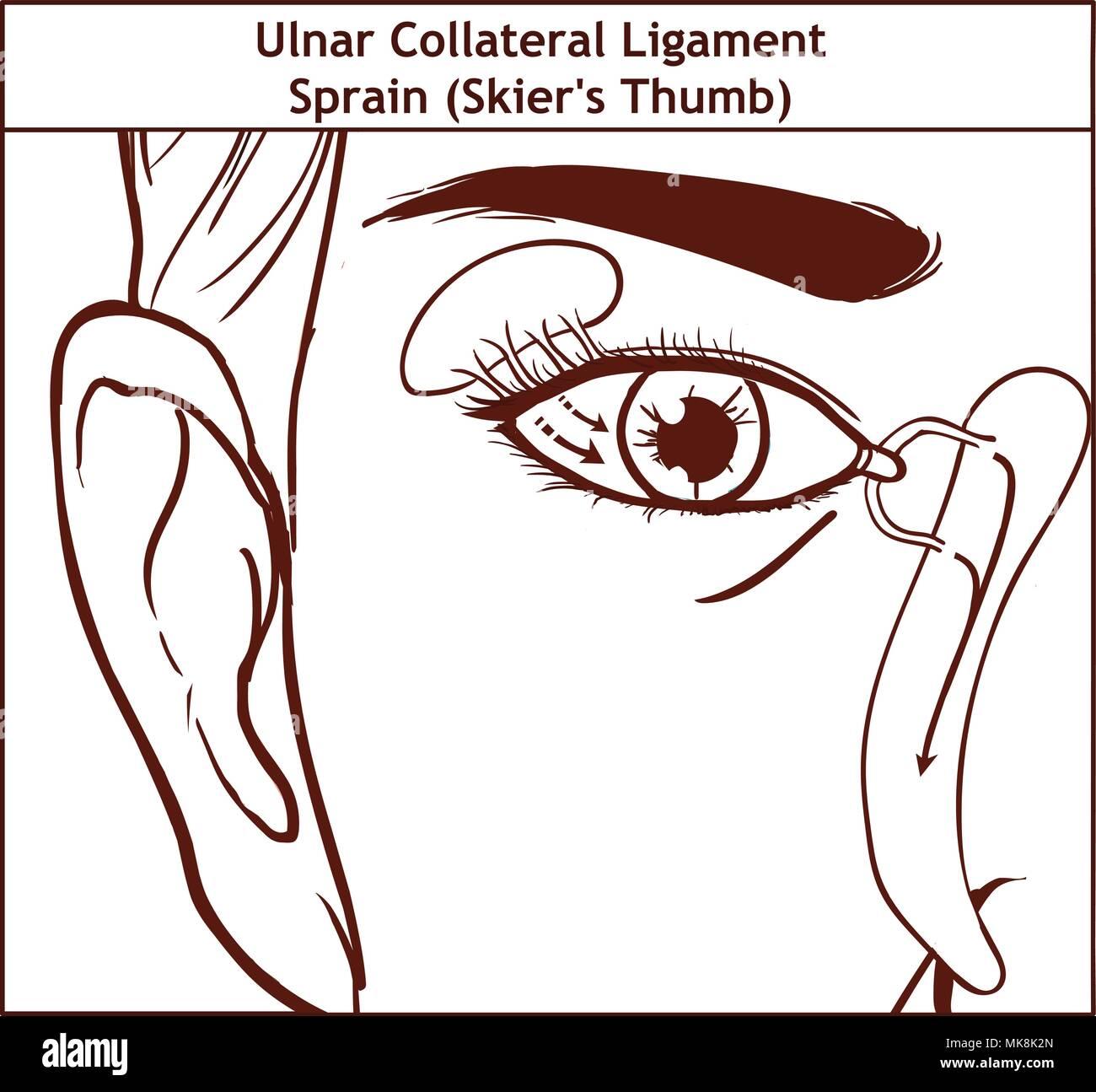 Vector illutration, anatomy of the Lacrimal apparatus Stock Vector ...