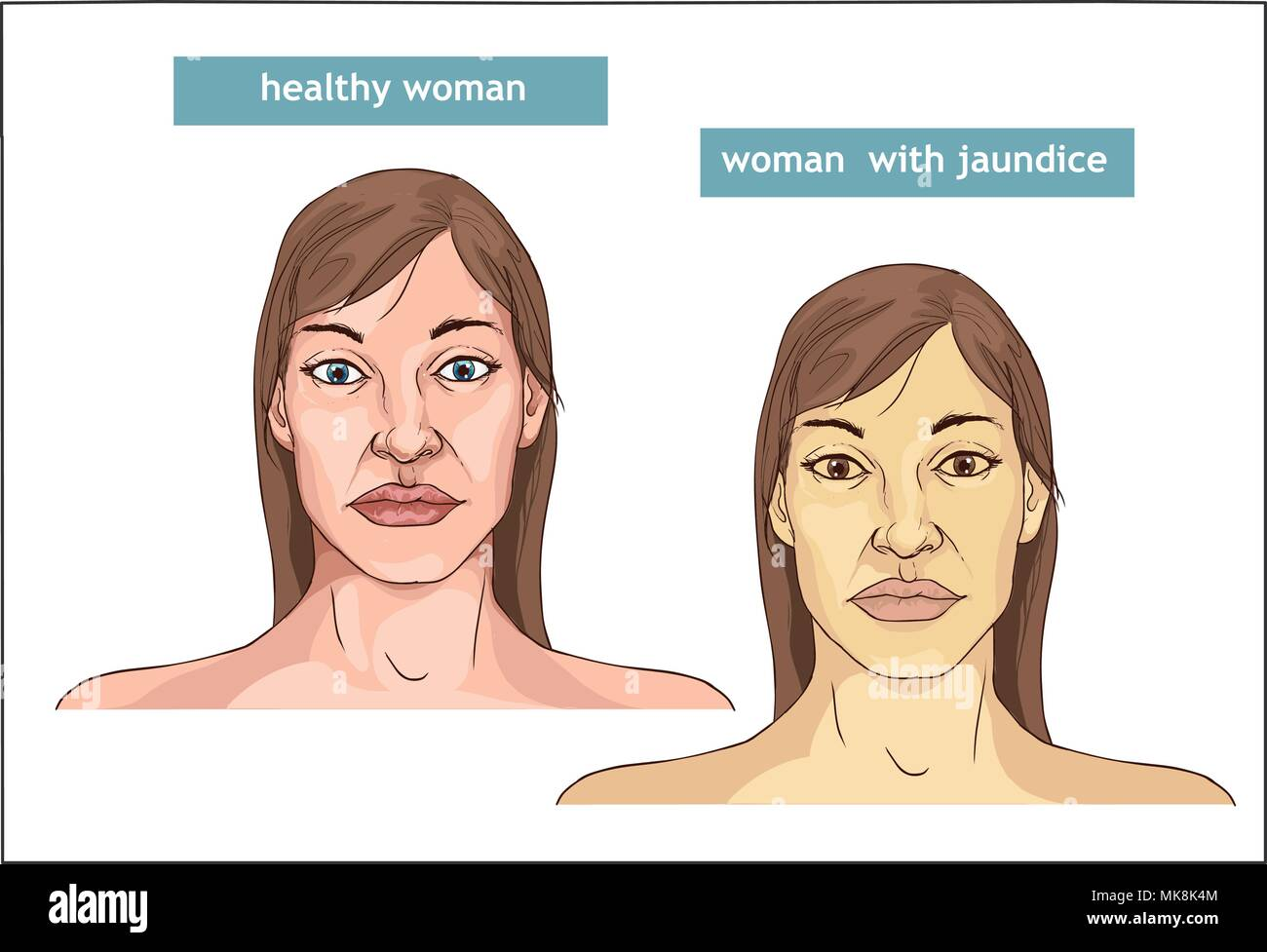The Comparison between normal skin people and yellowing from Jaundice - Stock Vector