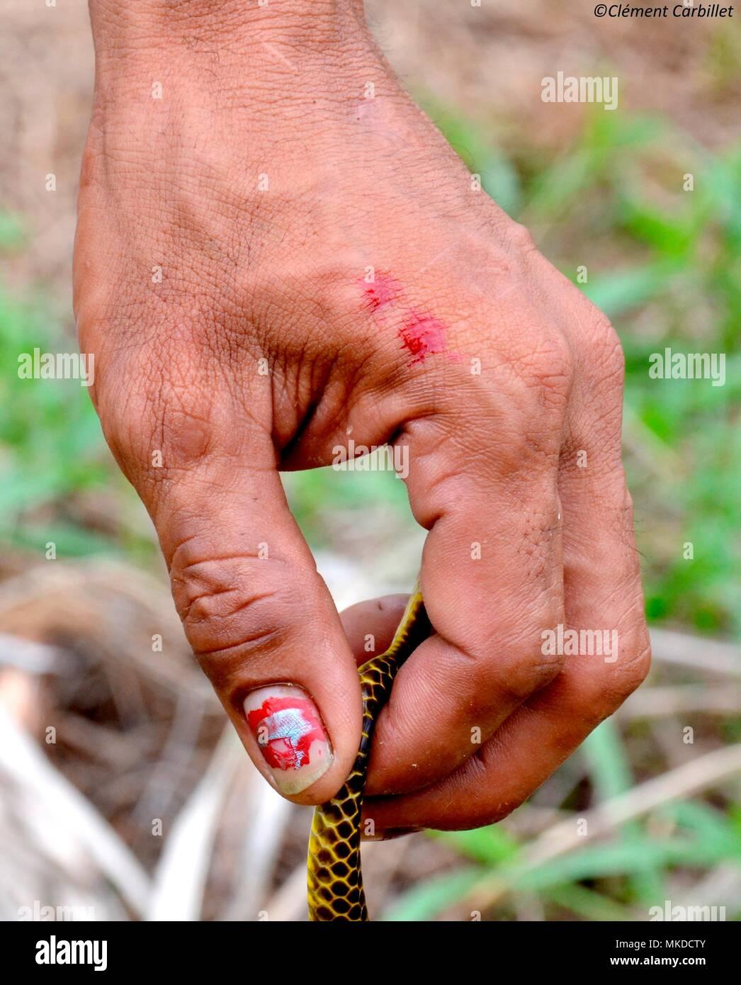 snake bite hand stock photos amp snake bite hand stock