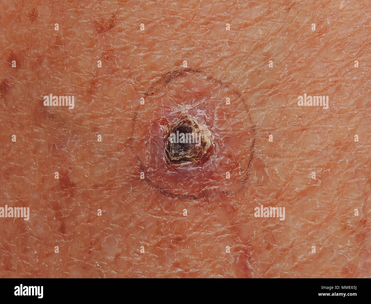 BASAL CELL CARCINOMA - Stock Image