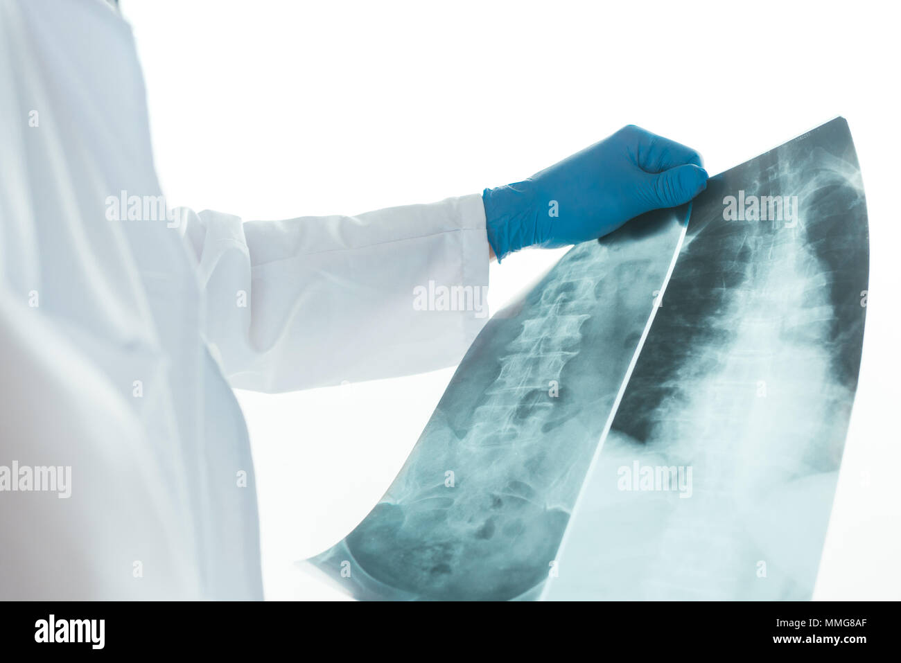 Doctor analyzing x-ray of the patient\'s spine in a medical clinic ...