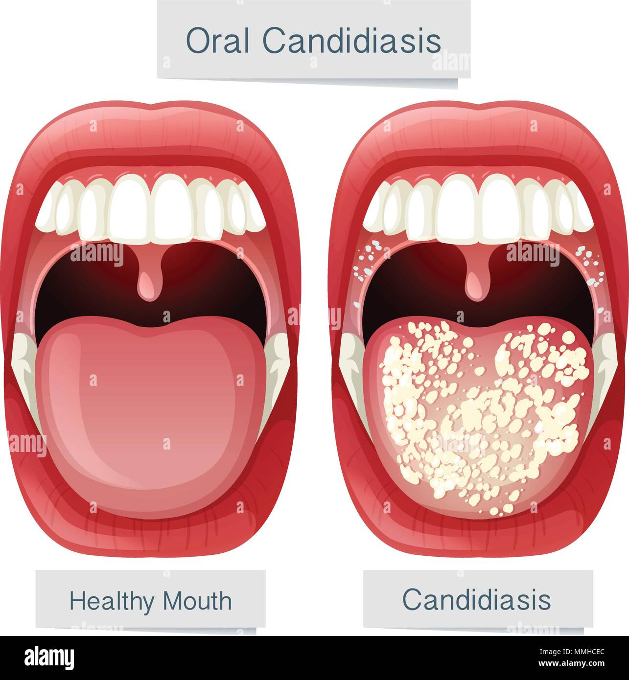 Human Mouth Anatomy Oral Candidiasis illustration - Stock Vector