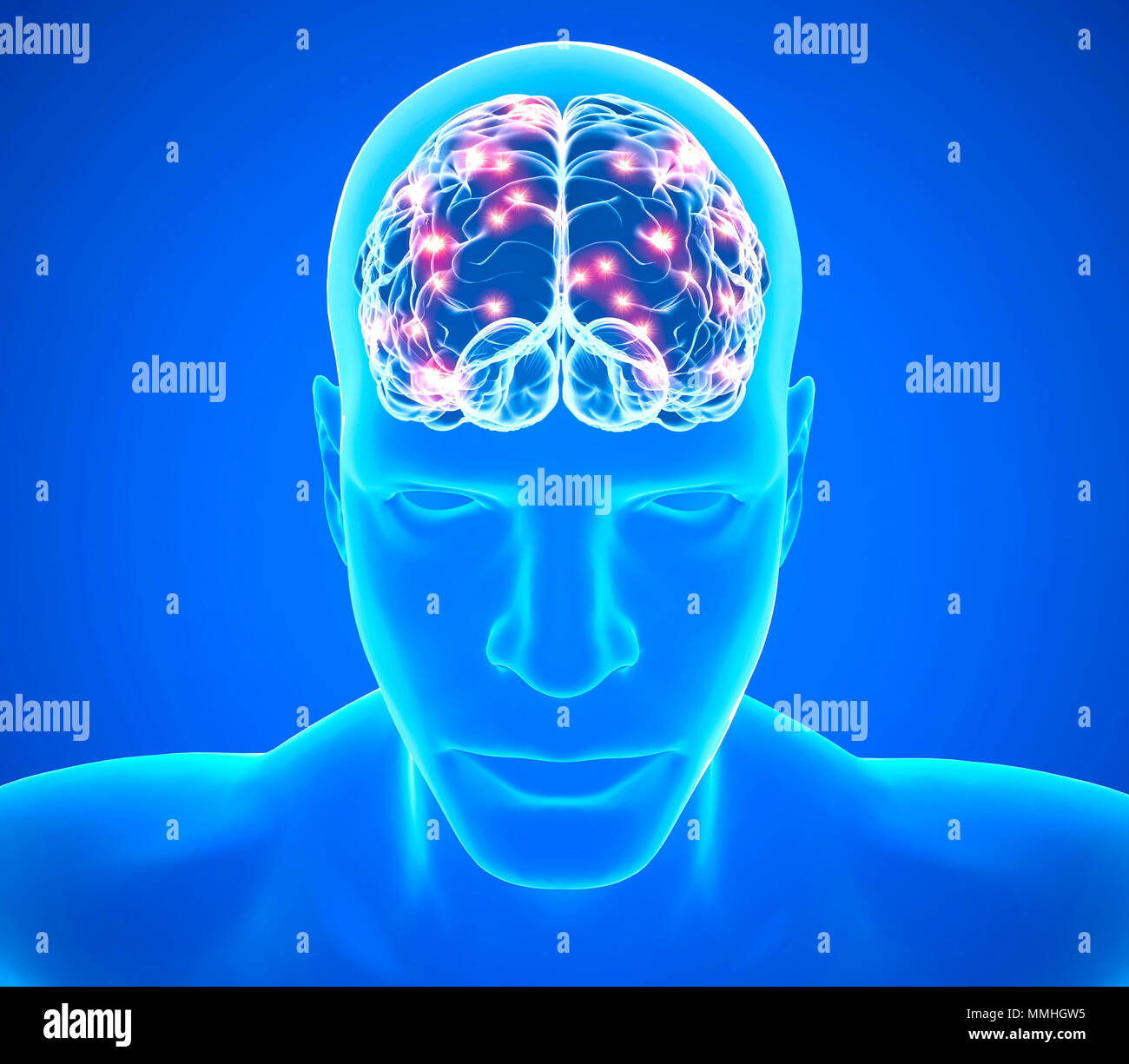 Brain degenerative diseases, Parkinson, synapses, neurons, Alzheimer's. Face of a man and brain x-ray. 3d rendering - Stock Image