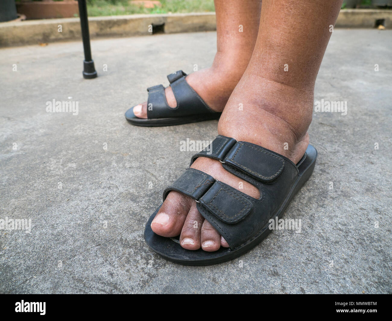 The Feet Of Man With Diabetes Dull And Swollen Due To The