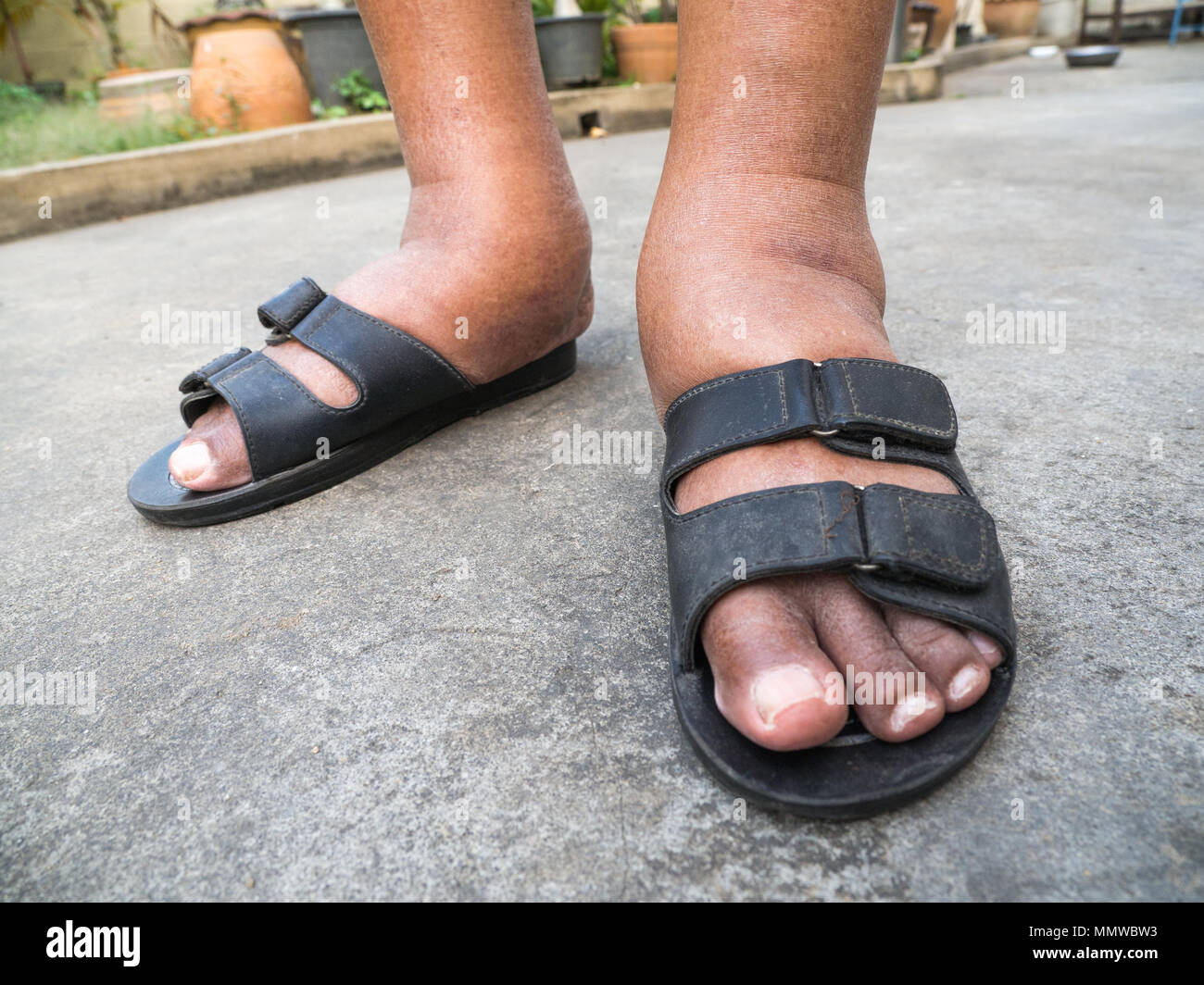 86f2806e7ade8f Ugly Feet Stock Photos   Ugly Feet Stock Images - Alamy