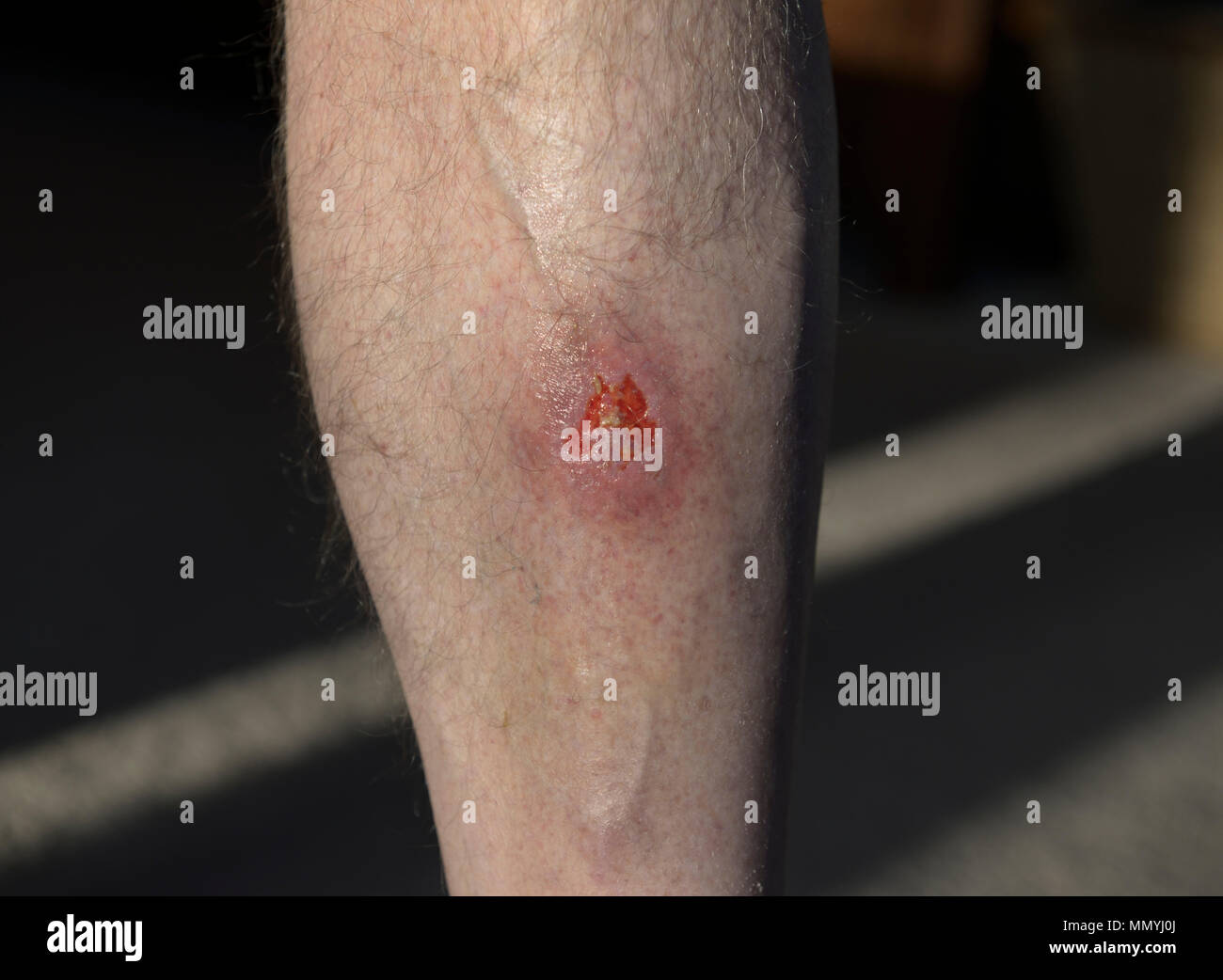 Open lower leg wound with cellulitis infection - Stock Image