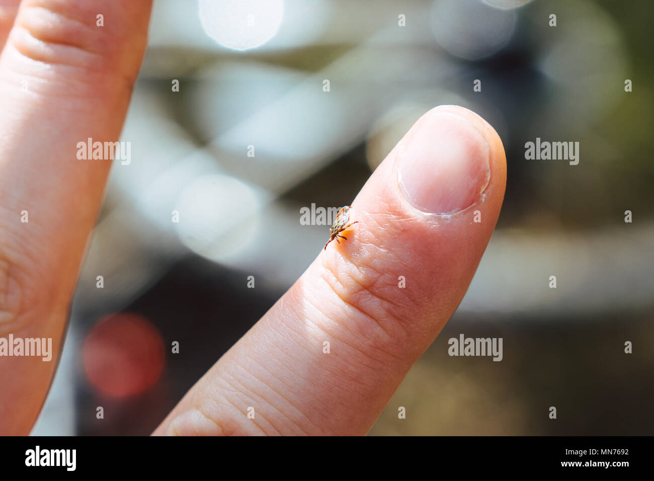 tick crawling on human finger - Stock Image
