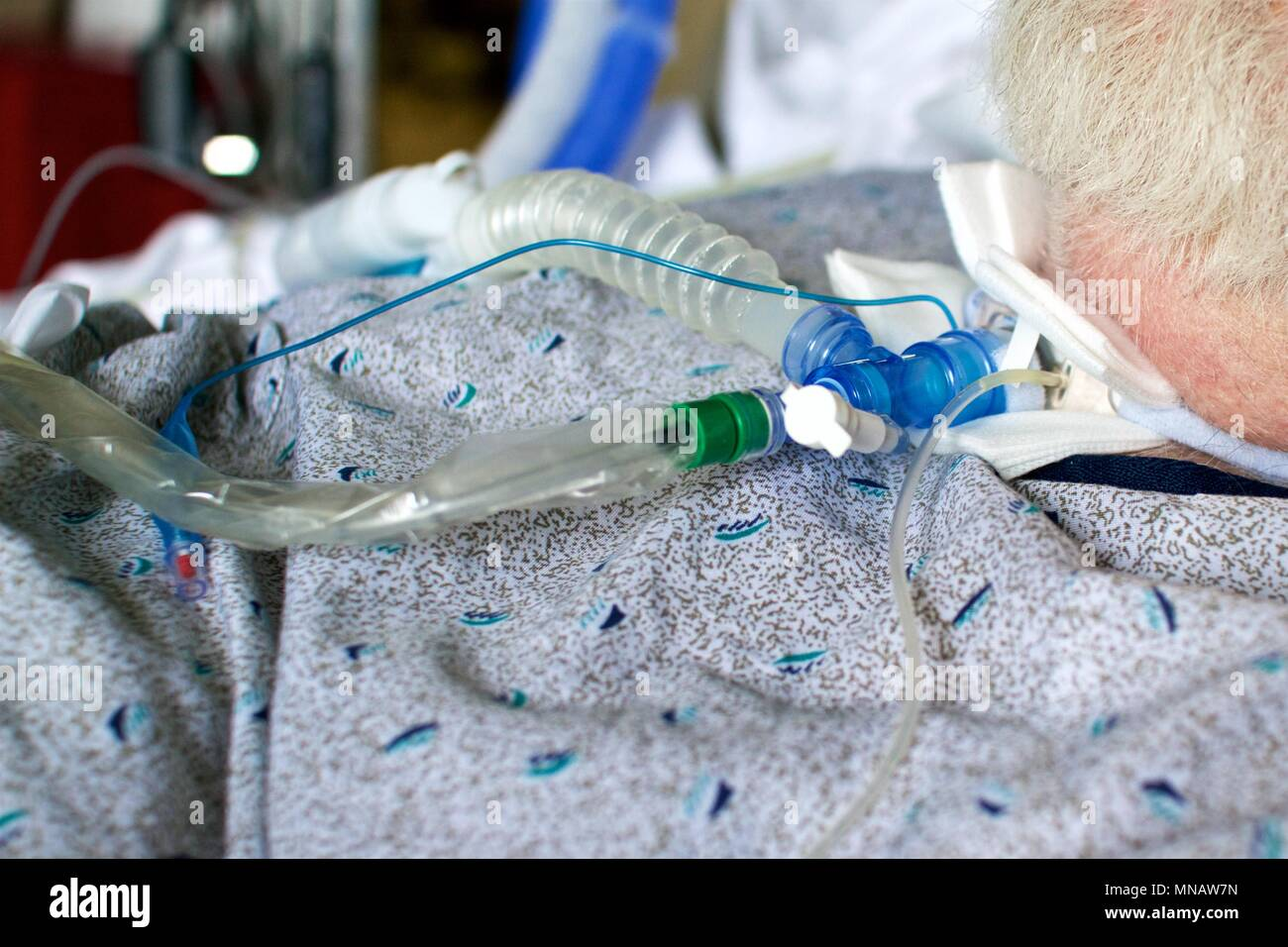 May 14, 2018 - Philadelphia, PA, USA:  Detail of an elderly male patient with a tracheostomy connected to a ventilator. Stock Photo