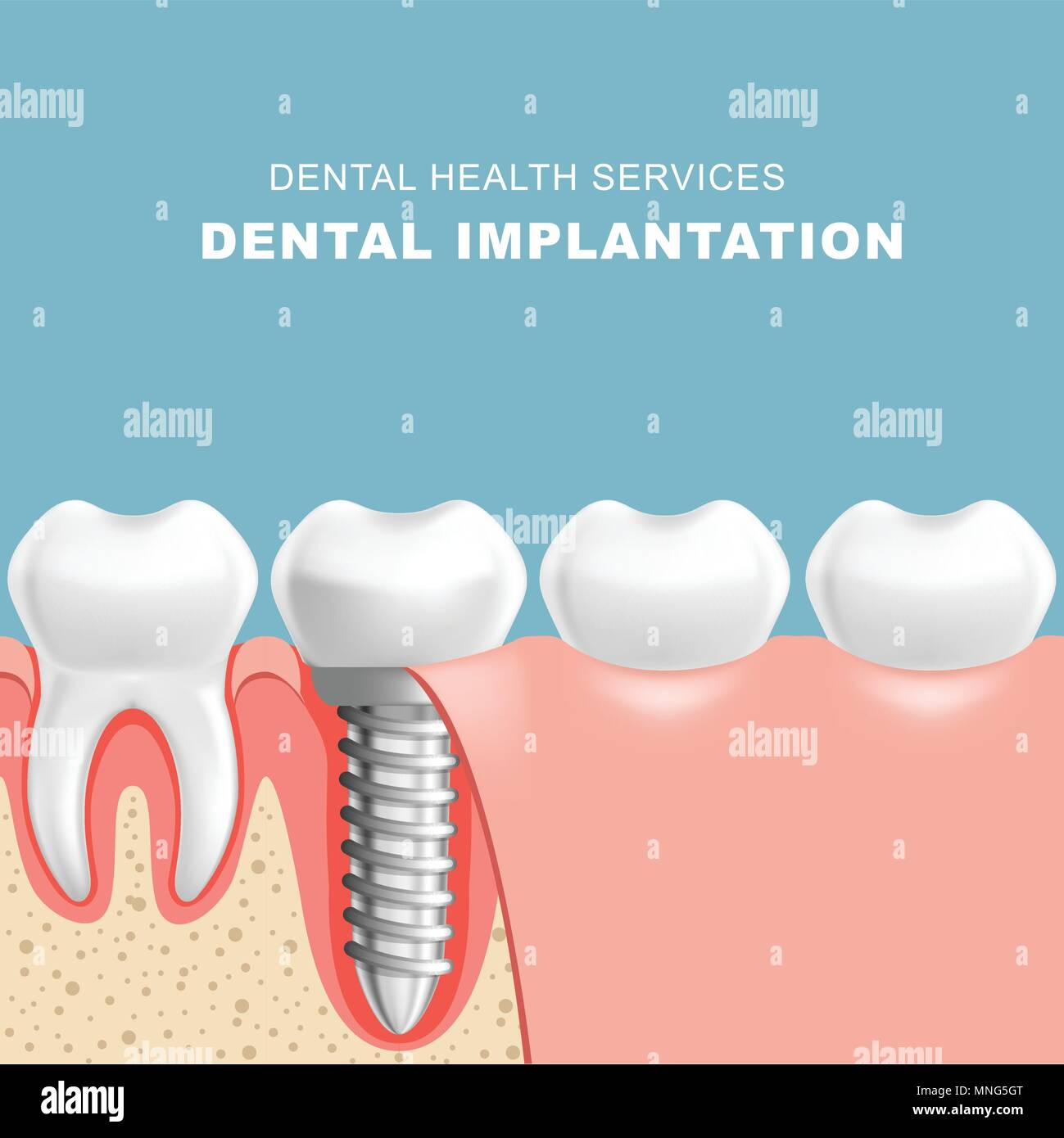 Gum section with dental implantat - row of teeth - Stock Image