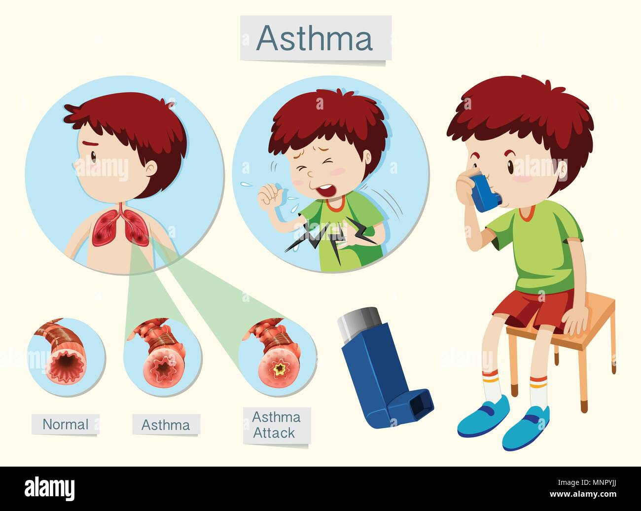 Bronchial Asthma Lung Stock Photos & Bronchial Asthma Lung Stock ...