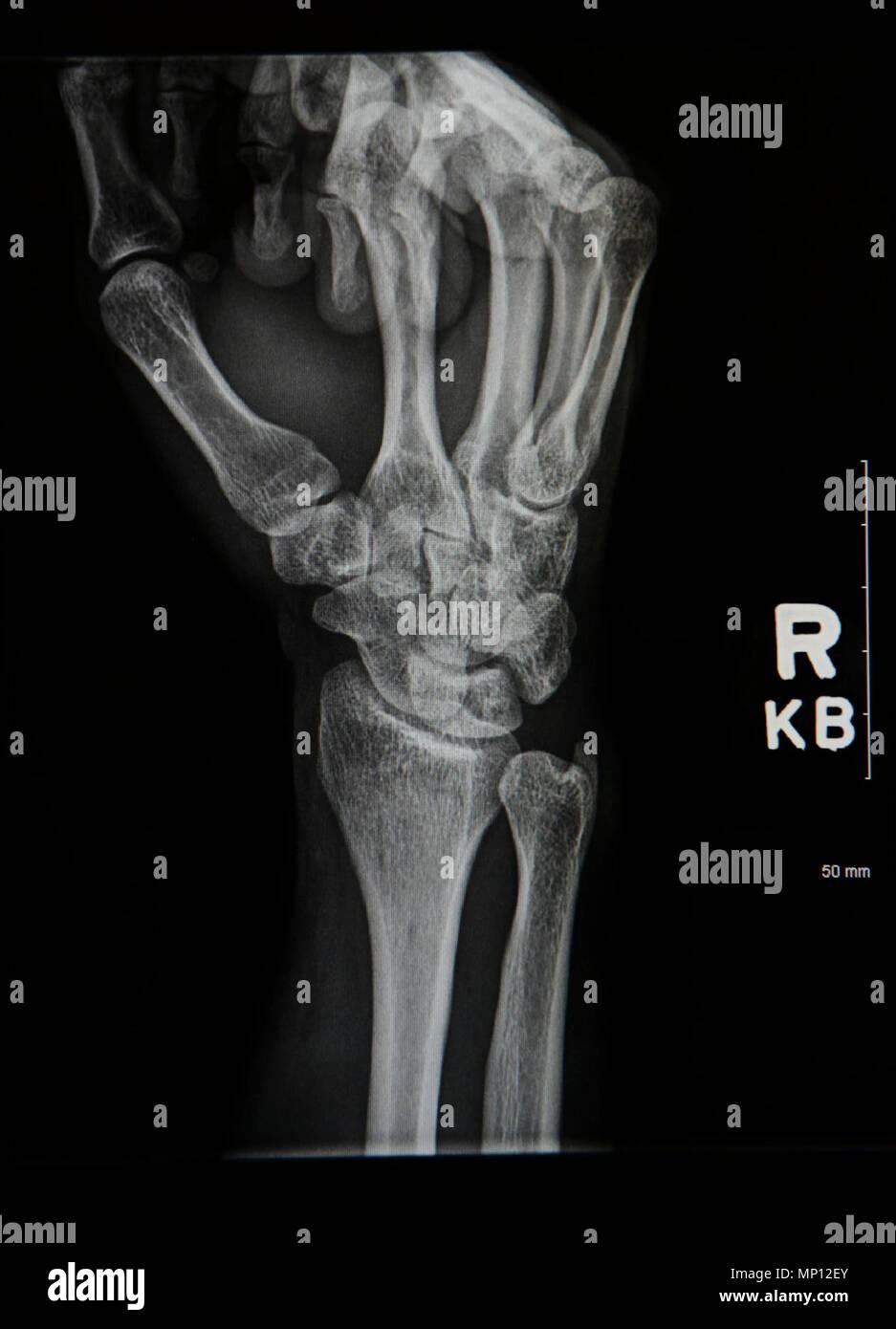 Bone Breaks Stock Photos Bone Breaks Stock Images Alamy