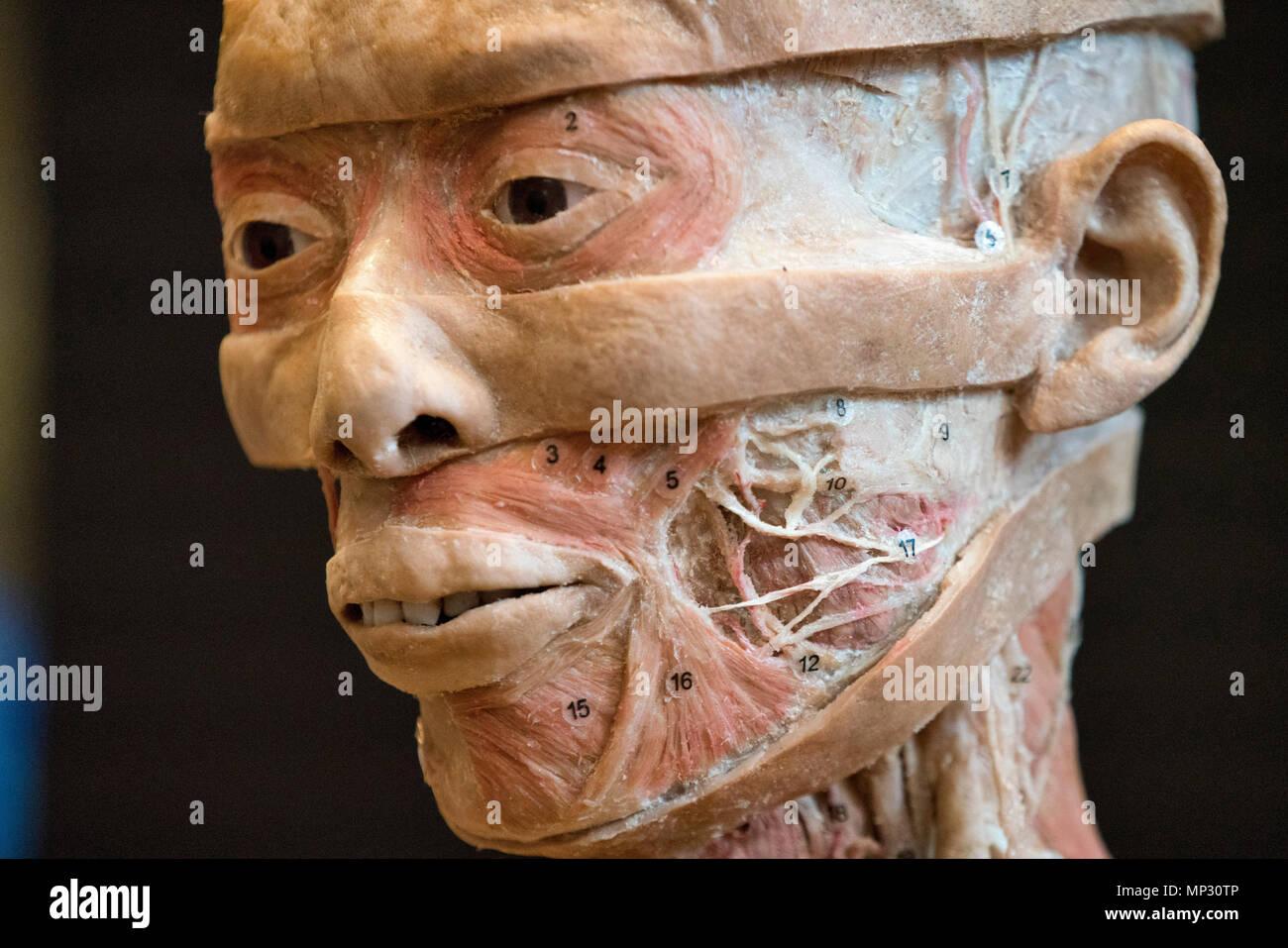 Anatomy Of A Real Human Head Stock Photo 185692662 Alamy