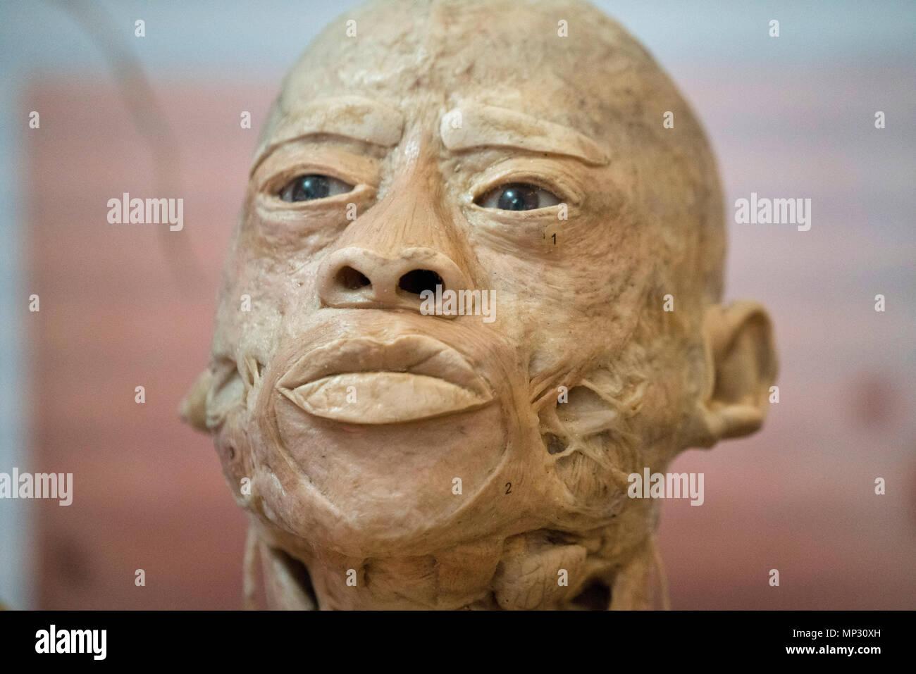 Anatomy Of A Real Human Head Stock Photo 185692713 Alamy