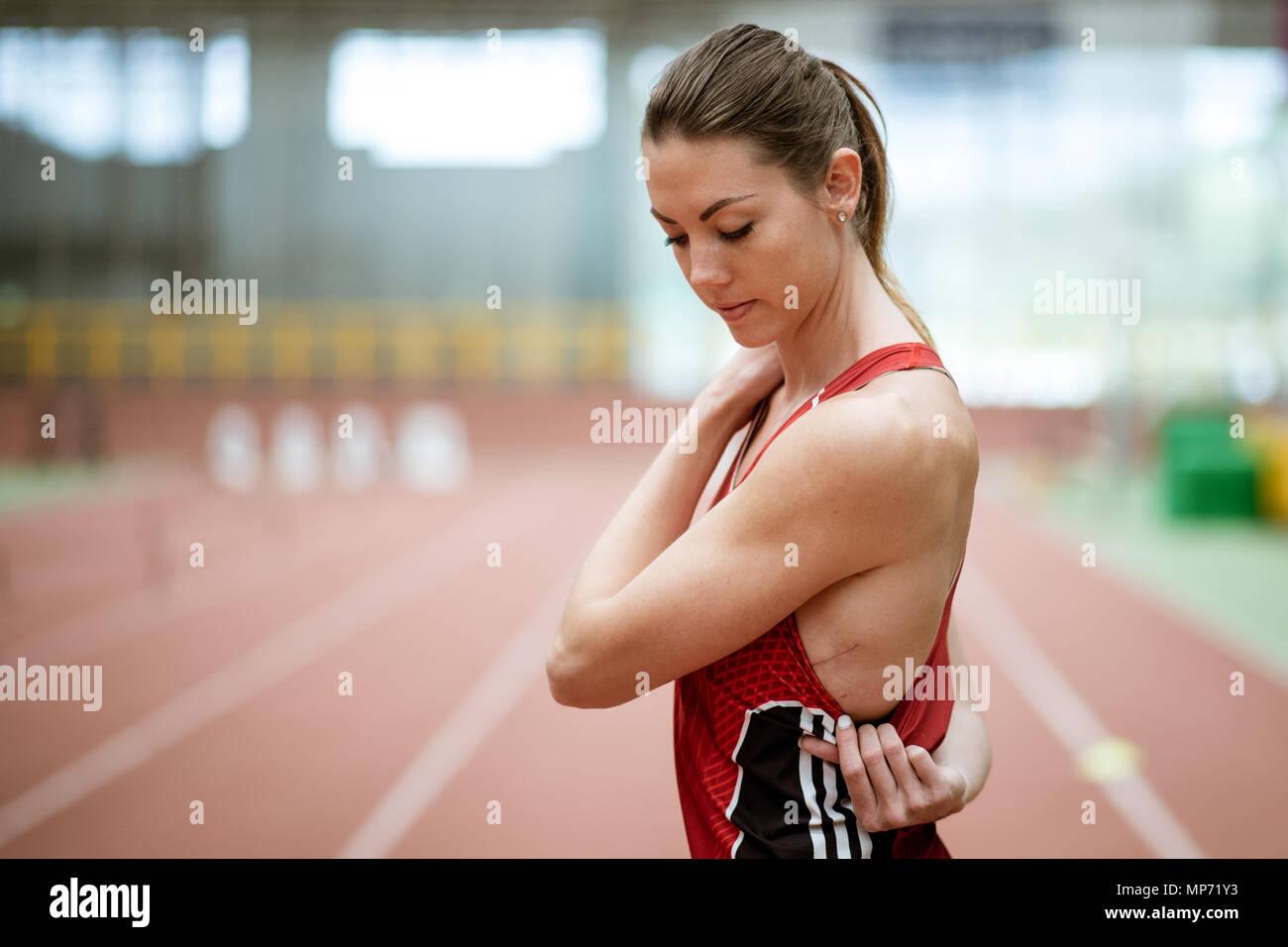11 May 2018, Germany, Leverkusen: Pole-jumper Katharina Bauer of TSV Bayer 04 Leverkusen shows her operation scar. Photo: Marius Becker/dpa - Stock Image