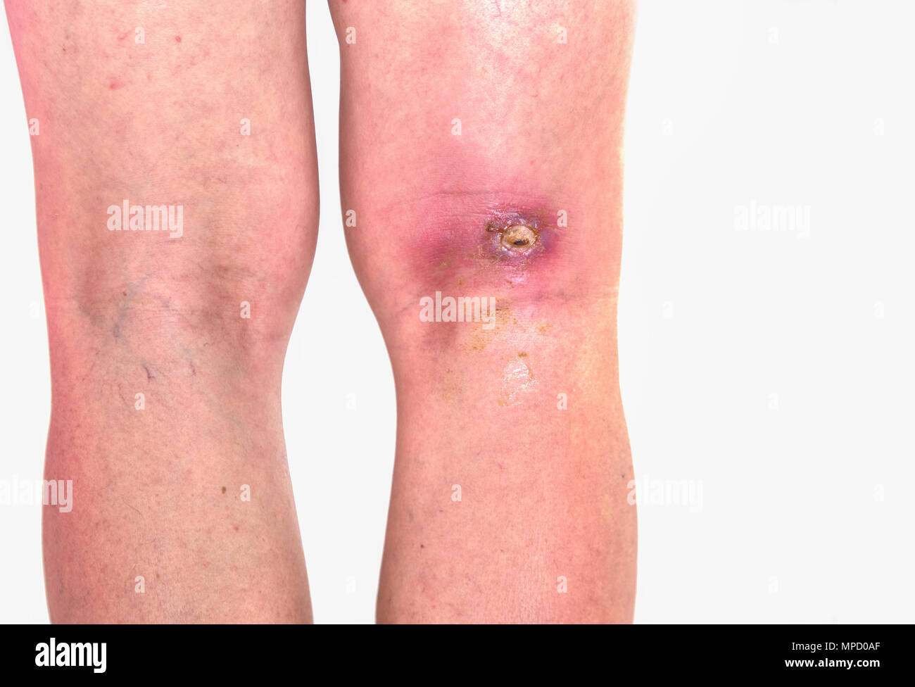 abcess popiteal area, inflammation of popiteal zone at right leg, infected wound righ knee bent - Stock Image