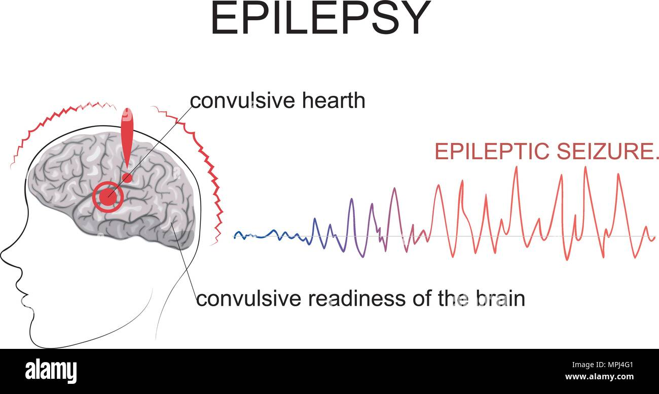 ILLUSTRATED TWO MAIN FACTORS NECESSARY FOR THE OCCURRENCE OF A SEIZURE. THE CENTER OF EXCITEMENT AND GENERAL CONVULSIVE READINESS OF THE BRAIN. - Stock Vector