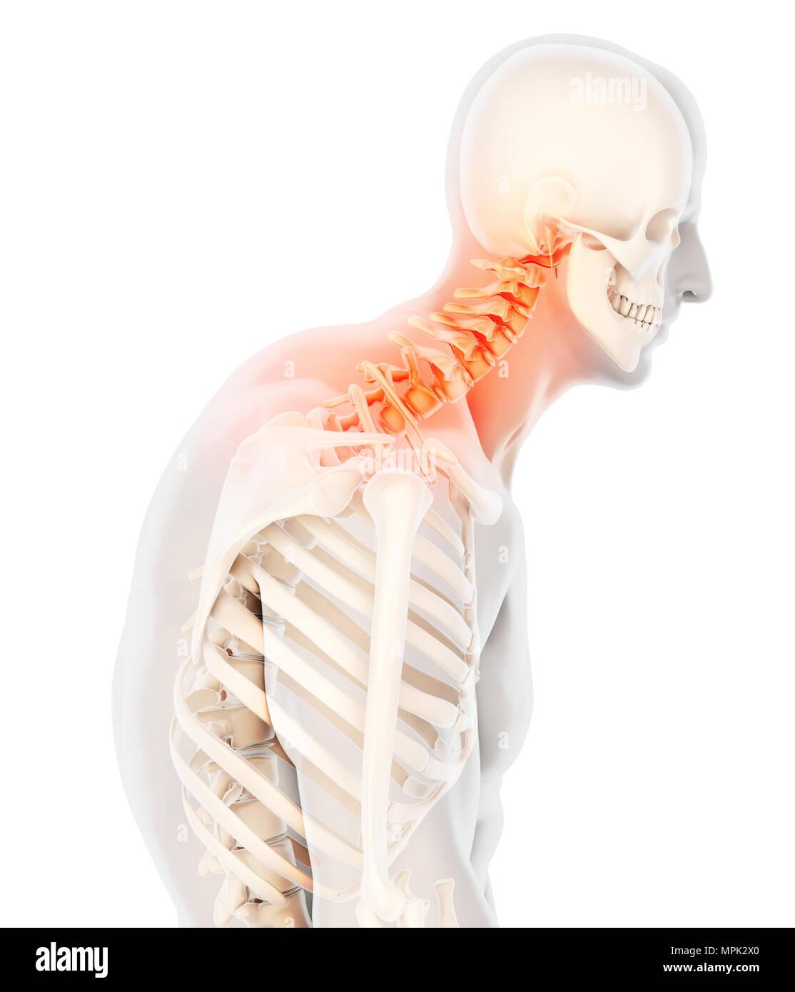 3d Illustration Neck Painful Cervical Spine Skeleton X Ray
